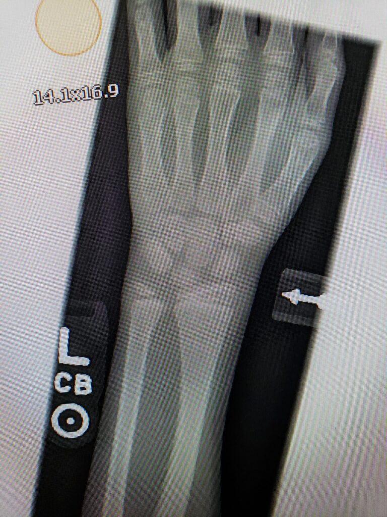 Kaylee's buckle break in her arm